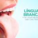 Língua branca pode causar mau hálito. Saiba como tratar!